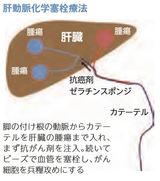 進化する肝動脈化学塞栓療法と肝動注化学療法 – フリー ...